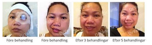 ansiktsförlamning